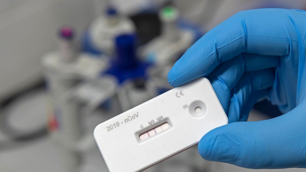 what is antibodies test how it helps to find covid
